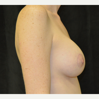 35-44 year old woman treated with Breast Lift with Implants after 3181982