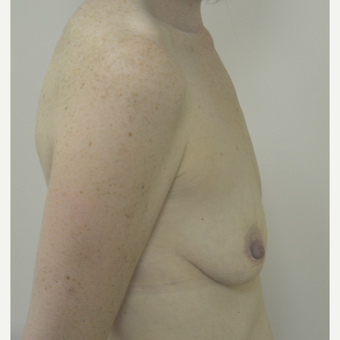 35-44 year old woman treated with Breast Lift with Implants before 3181982