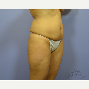35-44 year old woman treated with Tummy Tuck before 3422026