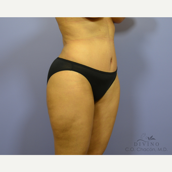 35-44 year old woman treated with Tummy Tuck after 3422026