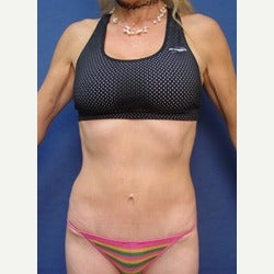 45-54 year old woman treated with Mini Tummy Tuck after 2058357