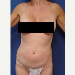 45-54 year old woman treated with Mini Tummy Tuck before 2058357