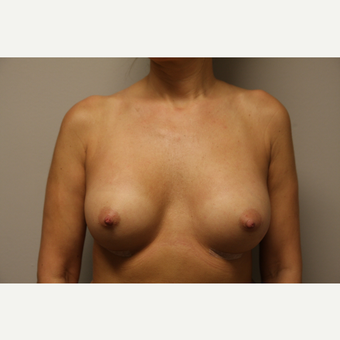 35-44 year old woman treated with Breast Augmentation after 3652135