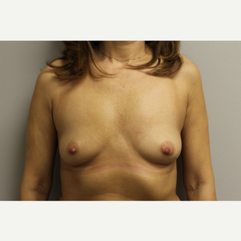 35-44 year old woman treated with Breast Augmentation before 3652135