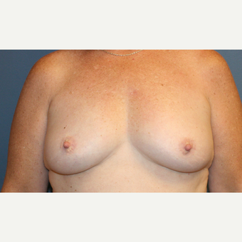Breast Augmentation before 3610014