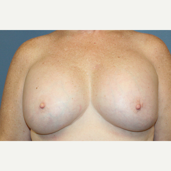 Breast Augmentation after 3610014