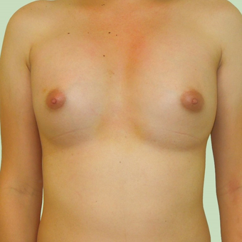 MTF Breast Augmentation after 2707528
