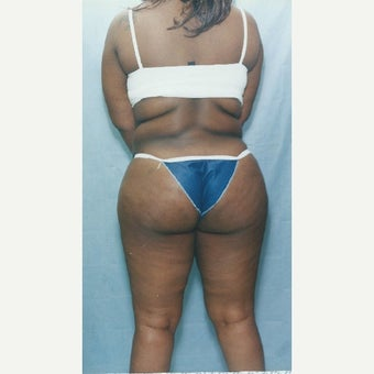 35-44 year old woman treated with Smart Lipo before 1737028