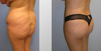 Butt Augmentation (Fat Transfer) Fat Transfer