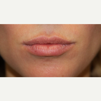 25-34 year old woman treated with Juvederm after 3147424