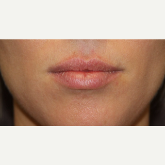 25-34 year old woman treated with Juvederm before 3147424