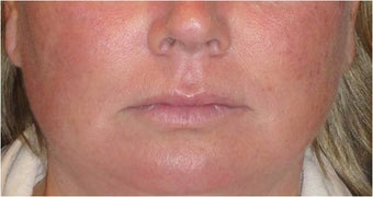 Juvederm before 686402