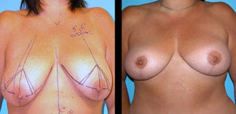 50 Year Old Woman - Breast Lift & Asymmetry Correction before 1086296