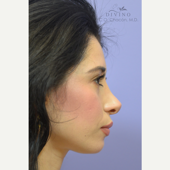 25-34 year old woman treated with Cheek Augmentation after 3421931