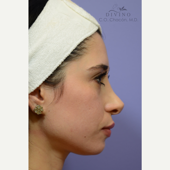 25-34 year old woman treated with Cheek Augmentation before 3421931