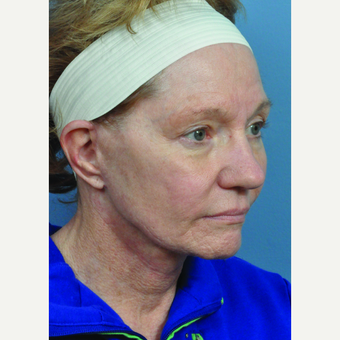 65-74 year old woman treated with Facelift after 3440185
