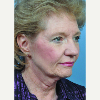 65-74 year old woman treated with Facelift before 3440185