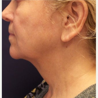 55-64 year old woman treated with Kybella after 2389234