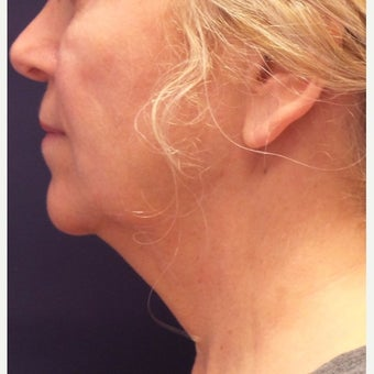 55-64 year old woman treated with Kybella before 2389234