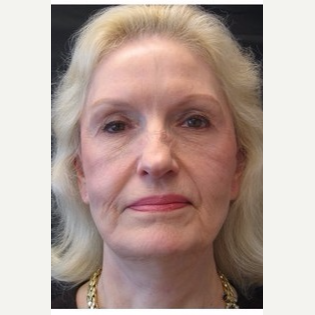 65-74 year old woman treated with Facelift before 3088549