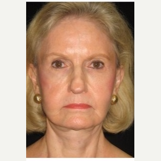 65-74 year old woman treated with Facelift after 3088549