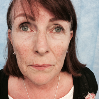 55-64 year old woman treated with Facelift before 3265132