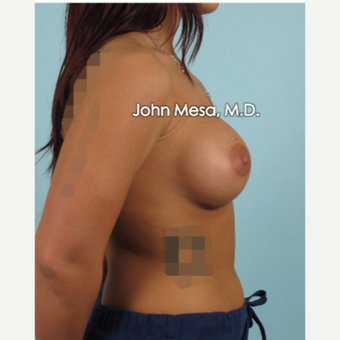 18-24 year old woman treated with Sientra Breast Implants after 3266860