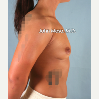 18-24 year old woman treated with Sientra Breast Implants before 3266860