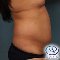 35-44 year old woman treated with Liposuction before 3253540