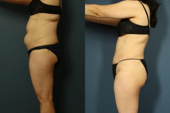 SmartLipo to Abdomen, Flanks and Torso before 952396