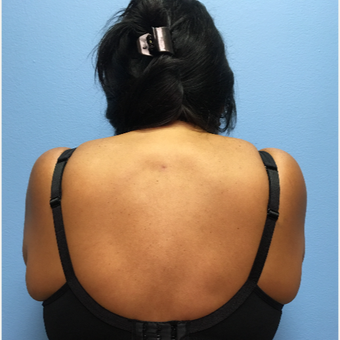 50 year-old woman treated with Liposuction of the upper back/neck after 3494968