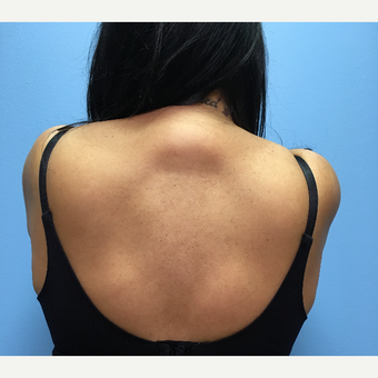 50 year-old woman treated with Liposuction of the upper back/neck before 3494968
