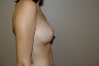 Breast Augmentation 312239