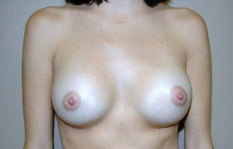 Breast Augmentation after 312239