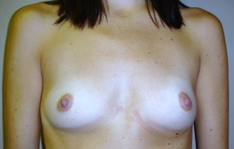 Breast Augmentation before 312239