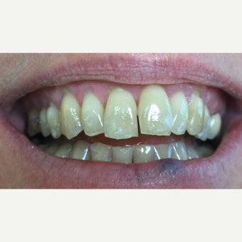 45-54 year old woman treated with Porcelain Veneers