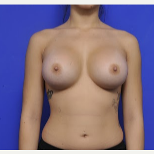 18-24 year old woman treated with Breast Augmentation after 3200464