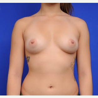 18-24 year old woman treated with Breast Augmentation before 3200464