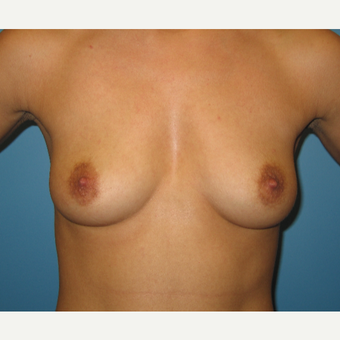 27 year old woman treated with Breast Augmentation before 3482727