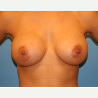 27 year old woman treated with Breast Augmentation after 3482727