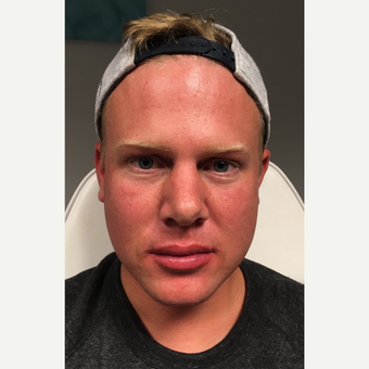 25-34 year old man treated with Juvederm Volbella after 3781906