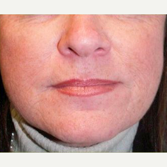 Woman treated with Juvederm after 1574487