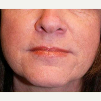 Woman treated with Juvederm before 1574487