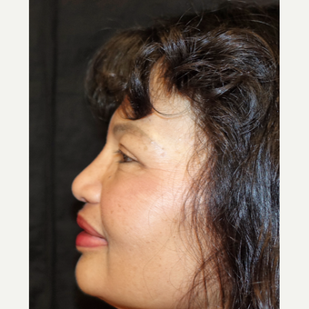 55-64 year old woman treated with Asian Rhinoplasty after 3320518