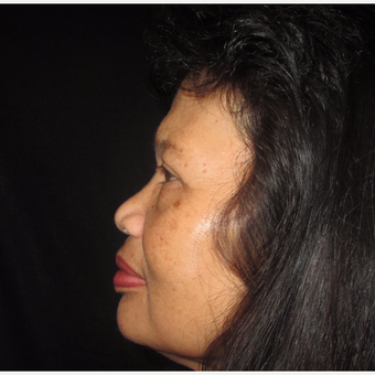 55-64 year old woman treated with Asian Rhinoplasty before 3320518