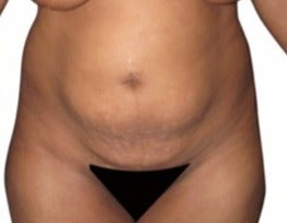 35-44 year old woman treated with Tummy Tuck before 1634715