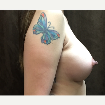 25-34 year old woman treated with Breast Augmentation after 3049389