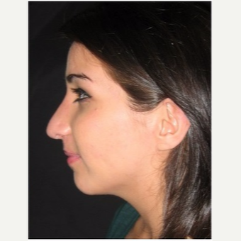 18-24 year old woman treated with Rhinoplasty after 3047032