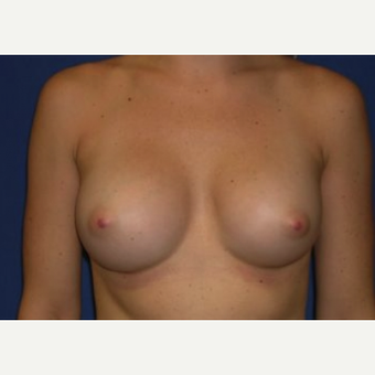 25-34 year old woman treated with Breast Augmentation after 3220055
