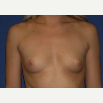 25-34 year old woman treated with Breast Augmentation before 3220055